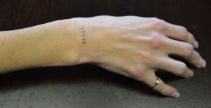 Surgical incision for excision of ganglion