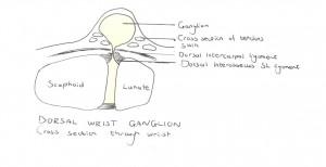 One-way valve system