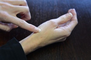 Position of pain in first carpometacarpal arthritis on dorsal surface