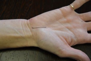 Carpal tunnel release incision