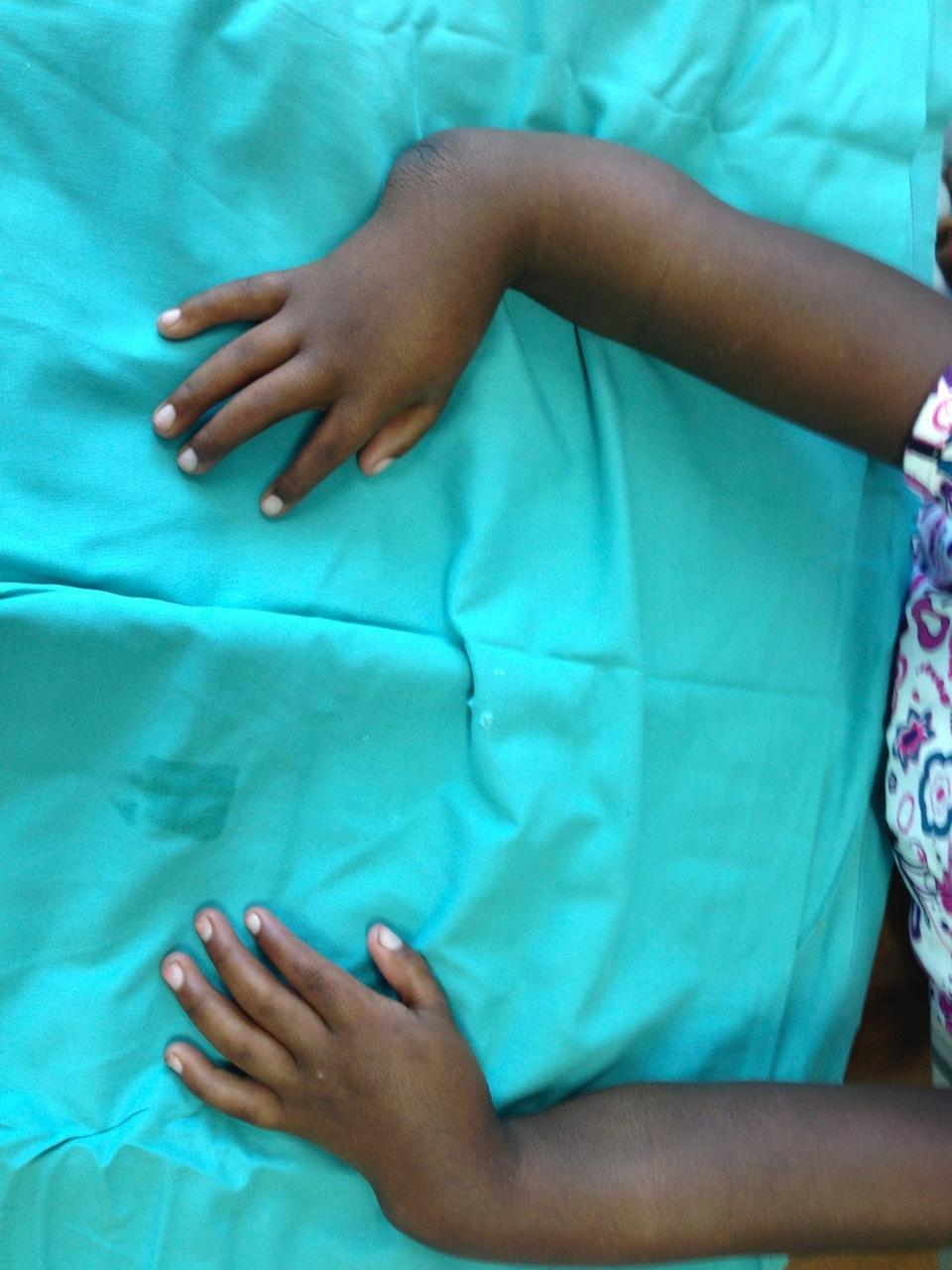 Congenital Hand Anomalies Surgery  U0026 Treatment Cape Town