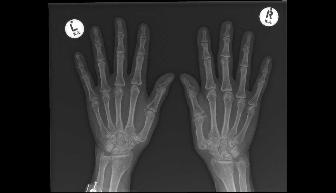 Base of thumb OA x-ray