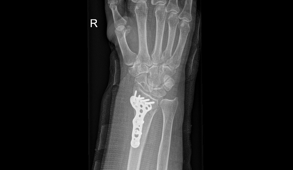Open reduction and internal fixation of distal radius fracture AP view (post surgery)